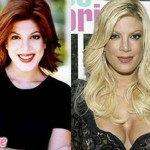 Tori Spelling before and after plastic surgery 04