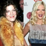 Tori Spelling before and after plastic surgery 05