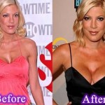Tori Spelling before and after plastic surgery 06
