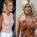 Tori Spelling before and after plastic surgery 07