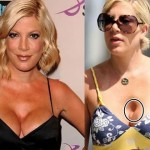 Tori Spelling before and after plastic surgery 08