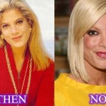 Tori Spelling before and after plastic surgery 09