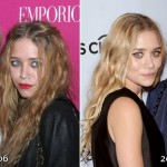 Ashley and Mary-Kate Olsen before and after plastic surgery 02