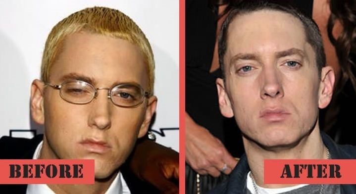 Eminem Before And After Rehab Eminem before a...