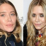 Mary-Kate Olsen before and after plastic surgery 03