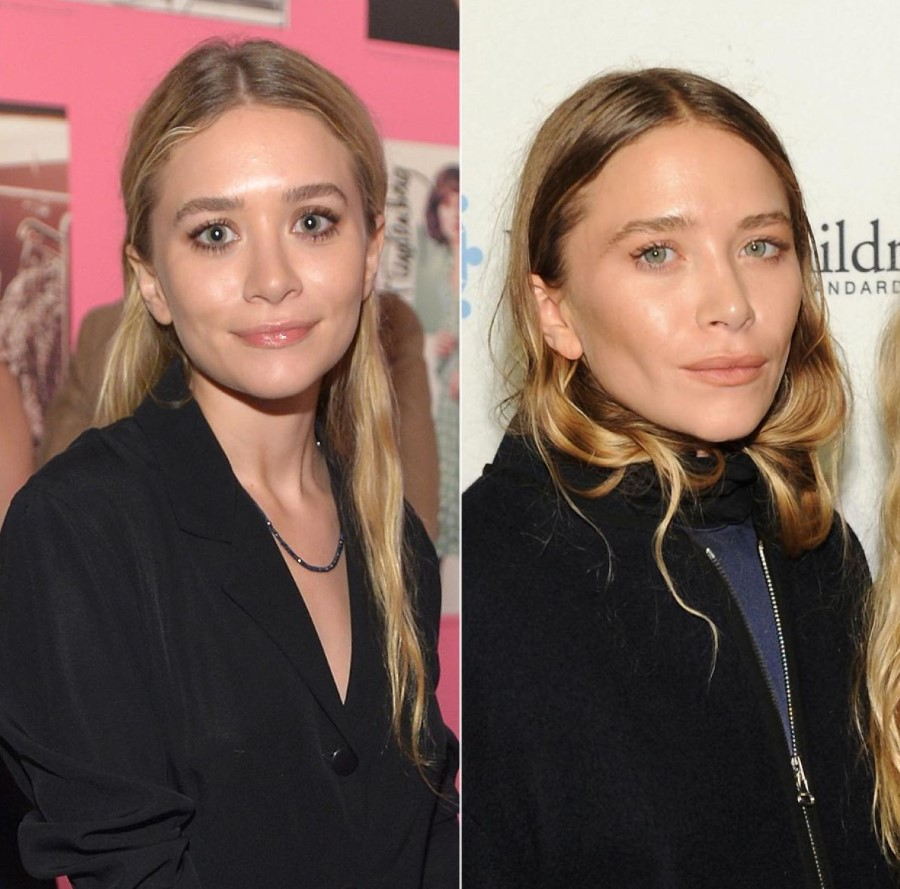 Mary-Kate Olsen before and after plastic surgery