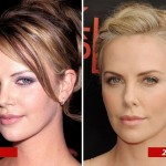 Charlize Theron before and after plastic surgery