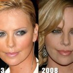 Charlize Theron before and after plastic surgery (2)