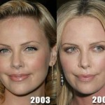 Charlize Theron before and after plastic surgery (32)