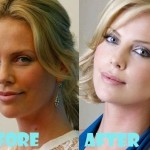 Charlize Theron before and after plastic surgery (4)