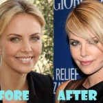 Charlize Theron before and after plastic surgery (6)