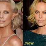 Charlize Theron before and after plastic surgery (8)