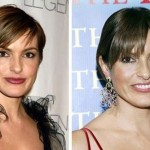 Mariska Hargitay before and after plastic surgery (1)