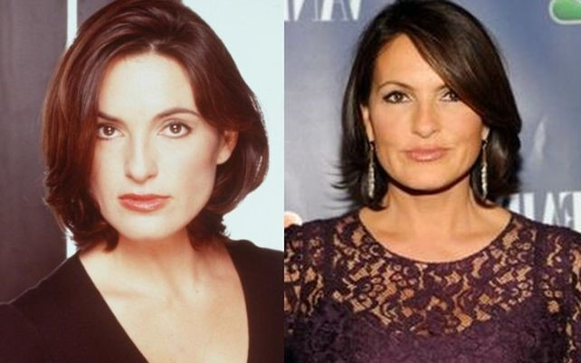 Mariska Hargitay before and after plastic surgery