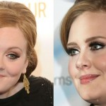Adele before and after plastic surgery (4)