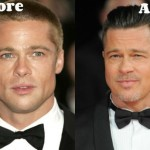 Brad Pitt before and after plastic surgery (14)