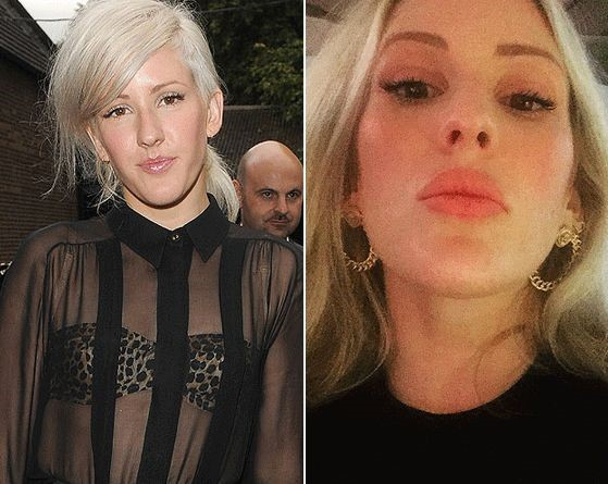 Ellie Goulding Before And After Lip Surgery 4