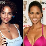 Halle Berry before and after plastic surgery