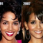 Halle Berry before and after plastic surgery (28)