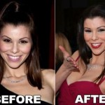 Heather Dubrow before and after Plastic Surgery (25)