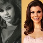 Heather Dubrow before and after Plastic Surgery