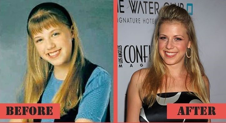 jodie sweetin implants