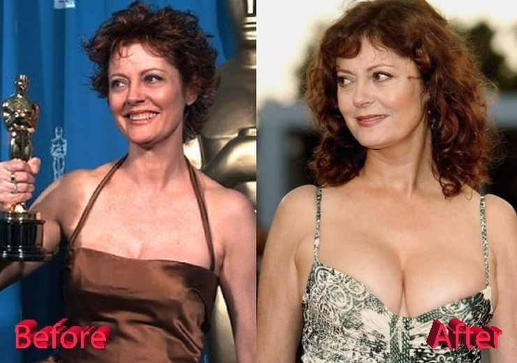 Susan Sarandon before and after plastic surgery