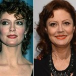 Susan Sarandon before and after plastic surgery (21)