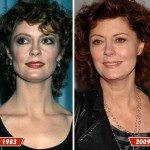 Susan Sarandon before and after plastic surgery (4)