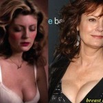 Susan Sarandon breast implants plastic surgery (17)