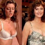 Susan Sarandon plastic surgery (16)