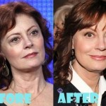 Susan Sarandon plastic surgery (18)