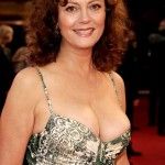 Susan Sarandon plastic surgery (25)