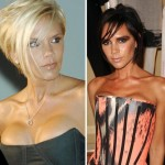 Victoria Beckham plastic surgery changes