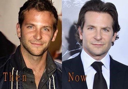 Bradley Cooper Before And After Plastic Surgery 17