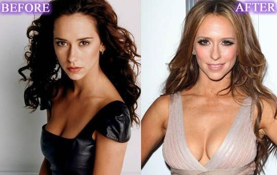 Jennifer Love Hewitt before and after breast implants