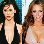 Jennifer Love Hewitt before and after plastic surgery (38)