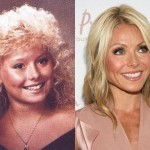 Kelly Ripa before and after plastic surgery (1)