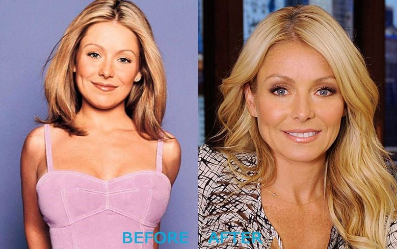 Kelly Ripa before and after plastic surgery (20)