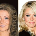 Kelly Ripa before and after plastic surgery (9)