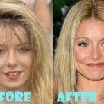 Kelly Ripa plastic surgery (18)