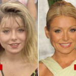 Kelly Ripa plastic surgery (19)