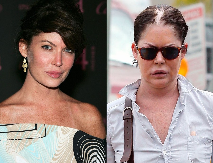 Lara Flynn Boyle After Plastic Surgery 8 Celebrity