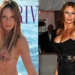 Melania Trump before and after breast augmentation (22)