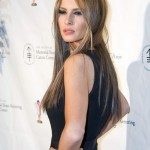 Melania Trump plastic surgery (10)