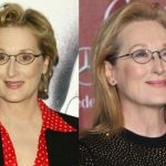 Meryl Streep before and after plastic surgery (13)