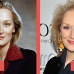 Meryl Streep before and after plastic surgery (18)