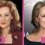Meryl Streep before and after plastic surgery (19)