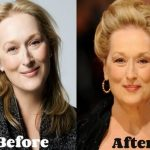 Meryl Streep before and after plastic surgery (22)
