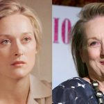 Meryl Streep before and after plastic surgery (26)